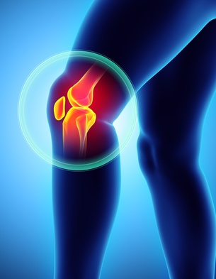 Arthrose du genou : quels traitements  en 2018 ?